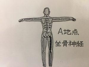 坐骨神経痛について 新常識 浦安腰痛専門院の見解