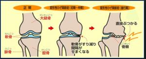 高齢者だけが抱えているわけではない膝の痛み 改善 vol2